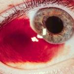 เลือดออกใต้เยื่อบุตา