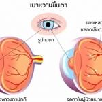 เบาหวานทำให้สายตาสั้นได้ไหม อย่างไร?