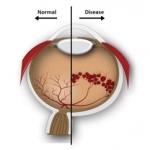 ภาวะโรคจอประสาทตาผิดปกติในกลุ่มเด็กคลอดก่อนกำหนด (Retinopathy of prematurity; ROP)