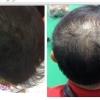 มาทำความเข้าใจการทำงานของ Samson & Caboki hair fiber กันครับ