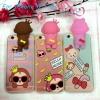 เคสไอโฟน6 case iphone 6s ลิงมีไฟ น่ารักมากๆ