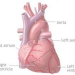 โรคหัวใจขาดเลือด