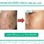 kristine ko-kool kiyoi acne adviser serum (ซีรัมขจัดปัญหาสิว) thumbnail 3