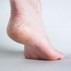 ส้นเท้าแตก เกิดขึ้นจากอะไร และลดูแลรักษาได้อย่างไร
