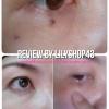 รีวิว กำจัดติ่งเนื้อ ใต้ตา ง่ายๆด้วยตนเอง โดยครีมกำจัดไฝ ขี้แมลงวัน กระ ติ่งเนื้อ by lilyshop43 (ผลลัพธ์ขึ้นอยู่กับสภาพผิวส่วนบุคคล)