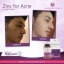 Zinc for Acne (100 Tablets) 50 mg อาหารเสริม วิตามินรวม A C E ฺB6 และ ซิงค์ ลดสิว ผิวเรียบเนียน วิตนามินรวมสำหรับผู้ที่มีปัญหาเรื่องสิว thumbnail 1
