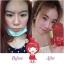 CHALiTA Whitening Facial Serum เซรั่มบำรุงผิวหน้า thumbnail 4